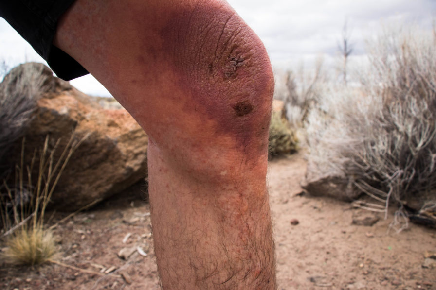 terrible really bad poison oak on knee